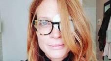 Jane Alexander, occhio bendato: «Ho una lesione alla cornea»