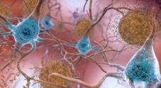 Demenza mima l'Alzheimer