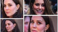 """Kate Middleton, sulla tempia un """"segno"""" di 8 cm: tabloid inglesi scatenati"""