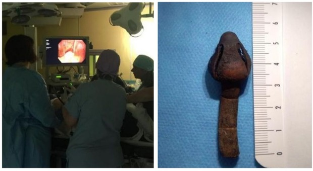 Aveva un tubo nello stomaco da vent'anni: donna 62enne operata d'urgenza