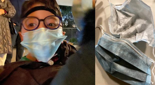 Paura per Sirio, il bimbo disabile star dei social. Incendio in casa: «Tanta paura, avvolti dal fumo e intrappolati sul balcone»