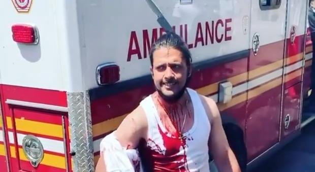 Uomo con un coltello conficcato in testa non sente dolore: parla e cammina come nulla fosse VIDEO CHOC