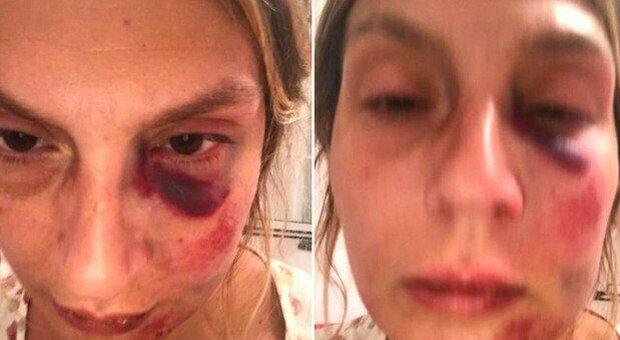 Massacrata di botte in vacanza per aver accudito dei cuccioli randagi, arrestate quattro persone