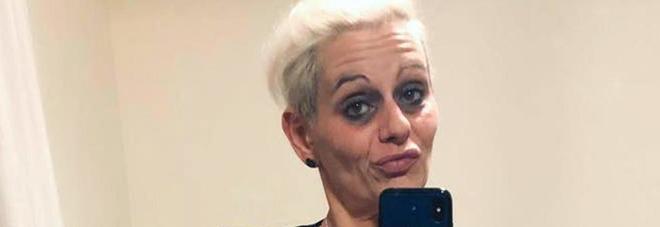 Sfigura l'ex con l'acido: «Da Sara 800 telefonate al giorno e messaggi con foto di bare»