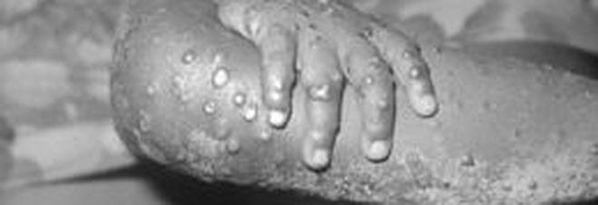 Cos'è il vaiolo delle scimmie: la malattia fu osservata per la prima volta nel 1958