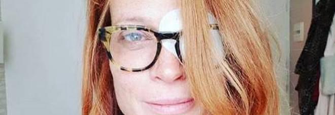 Jane Alexander, grave problema di salute: «Ho una lesione alla cornea»