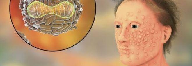 Vaiolo delle scimmie, l'infettivologo: «Non ci sono cure né vaccini»