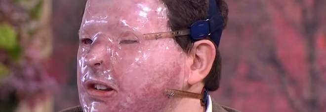 Acido in faccia, il nuovo gioco del terrore: «Attacchi senza alcun motivo, da sconosciuti»