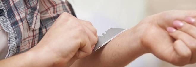"""Tagli al braccio e confusa: ragazza di vent'anni vittima del """"Blue whale"""" (balena blu)"""