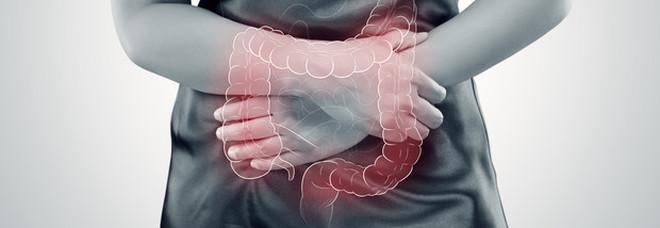 Tumore, mangiare yogurt due o più volte a settimana potrebbe aiutare a prevenire quello all'intestino