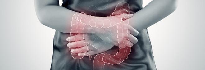Tumore al colon, allarme dei medici: «È in aumento tra i giovani»