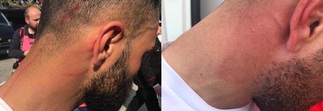 Agguato ai giocatori del Taranto: colpiti con una cazzottiera nell'intervallo della partita