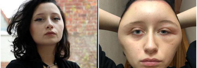 Diciannovenne sfigurata dopo la tintura per capelli: «Ho rischiato di morire»