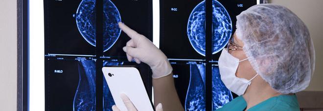Tumori, l'Oms: «Non siamo tutti uguali davanti alla malattia». Ecco quali fattori incidono