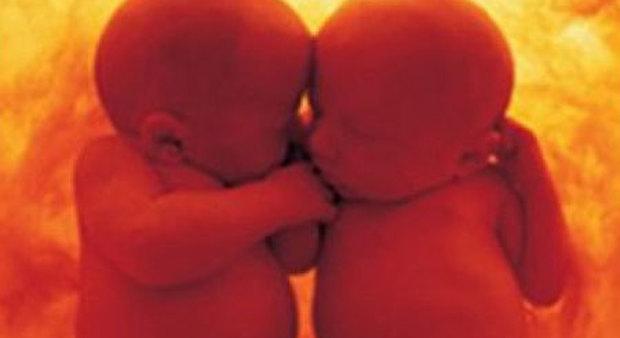 Madre con il tumore, gemellini abbracciati nel grembo salvati